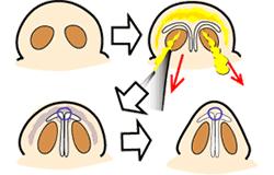 鼻尖縮小手術の概略