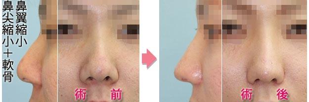 鼻尖縮小 皮下軟部組織&軟骨除去+軟骨縫合症例B