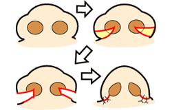 鼻翼縮小 外側+鼻孔縁(底)+内側切除