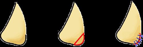 鼻翼縮小外側法:横から