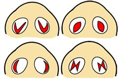 鼻翼縮小内側法