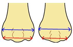 幅狭を鼻孔底切除法単独で行う場合の欠点