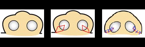 鼻翼縮小 鼻孔縁(底)切除