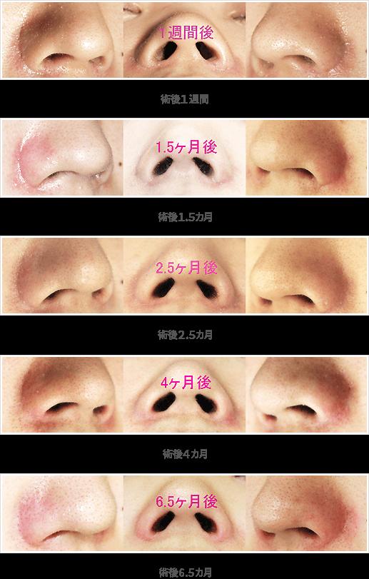 小鼻縮小:内側+鼻孔底+外側切除法症例A前面