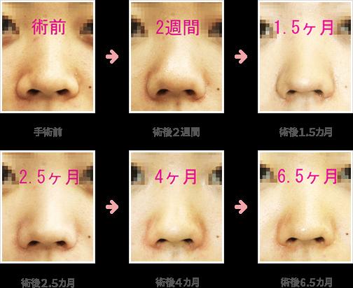 小鼻縮小の症例:内側+鼻孔底+外側切除法症例A