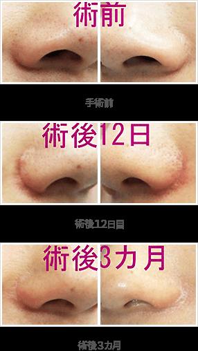 小鼻縮小の症例:内側+鼻孔底+外側切除法症例A手術前