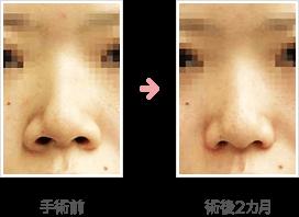 小鼻縮小:内側+鼻孔底+外側切除法症例B