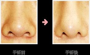 小鼻縮小:外側+内側+鼻孔底切除法+シリコンプロテーゼ