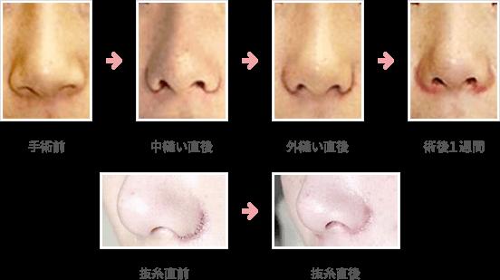 小鼻縮小:外側+内側+鼻孔底切除法