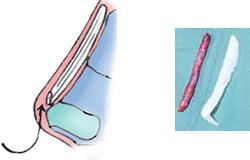 側頭筋膜移植