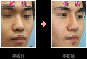 隆鼻シリコンプロテーゼ(鼻根部~鼻尖部)症例A