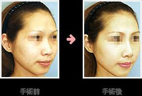 隆鼻シリコンプロテーゼ(鼻根部~鼻尖部)症例B手術前