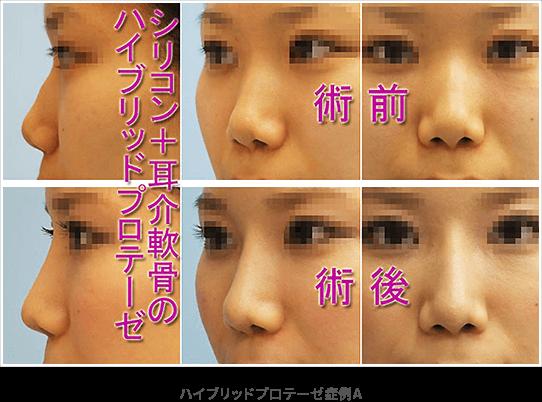 ハイブリッドプロテーゼ(シリコン+耳介軟骨)症例A