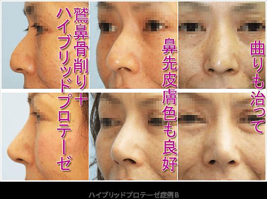 ハイブリッドプロテーゼ(シリコン+鼻翼軟骨)+わし鼻骨削り・鼻尖縮小症例B