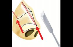 鼻尖縮小手術の手術範囲拡大