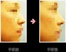わし鼻整形症例A