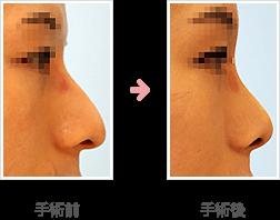 わし鼻整形症例B