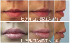 唇のヒアルロン酸注入