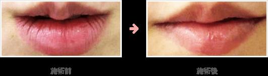 唇の整形(上唇への注入)