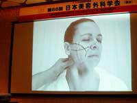日本美容外科学会での動向