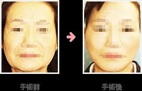 フェイスリフト症例 コメカミ~頬+脂肪吸引