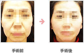 フェイスリフト症例 頬~あご+脂肪吸引