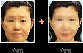 フェイスリフト症例 コメカミ~頬~あご+脂肪吸引