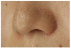 小鼻縮小の傷痕