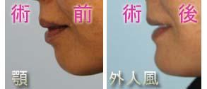 顎(アゴ)プロテーゼ 術前・術後