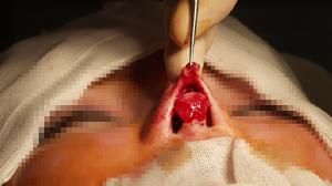 鼻尖縮小のオープン法