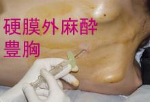 硬膜外麻酔で豊胸