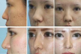 鼻中隔延長+I型プロテーゼ