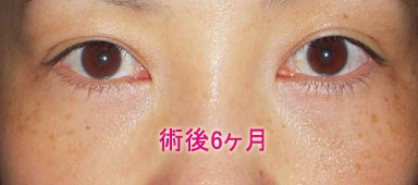 下瞼切開+脱脂+脂肪注入