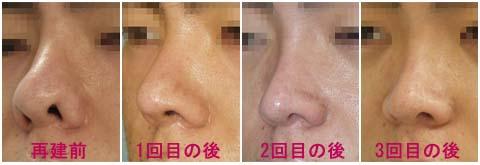 鼻尖縮小、鼻孔縁下降、プロテーゼ入替、鼻先軟骨移植
