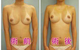 肩幅を狭くする手術の術前・術後