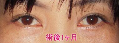 下眼瞼切開+脱脂+注入 術後1カ月
