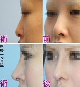 鼻中隔延長 術前術後