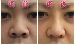 鼻中隔延長 I型プロテーゼ 小鼻縮小
