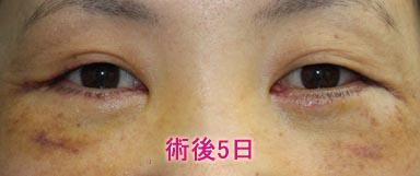 下眼瞼切開+脱脂+注入 術後5日