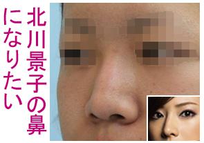 北川景子の鼻に整形したい