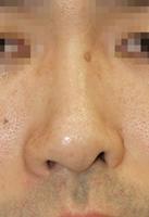 鼻孔縁延長術前