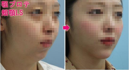 顎プロテーゼ 頬顎脂肪吸引 術前術後