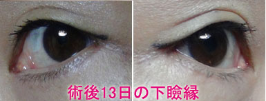 下瞼切開+脱脂+注入 .術後13日の下瞼縁jpg