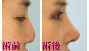 肋軟骨による鼻中隔延長