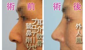 鼻 鷲鼻削り・プロテーゼ・耳介軟骨