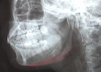 アゴからエラまで切り上げ(下歯槽神経管を一部開放)