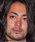 山田孝之の鼻に整形したい時はI型プロテーゼ+鼻中隔延長