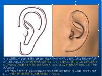 小耳症の再建(肋軟骨フレーム)