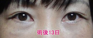 下瞼切開+脱脂+注入 .術後13日