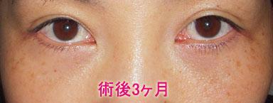 下眼瞼切開 脱脂 脂肪注入 術後3ヶ月